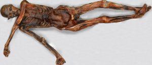 The body of d'Ötzi